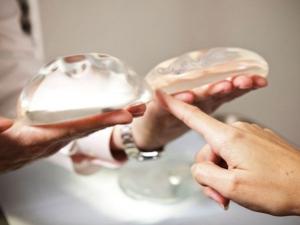 Negligencia por implante mamario